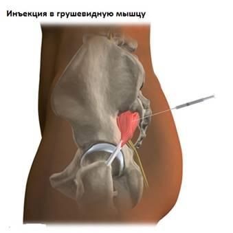a boka ízületének kötszerzése ligamentum sérülés esetén arcbőr és ízületi betegségek