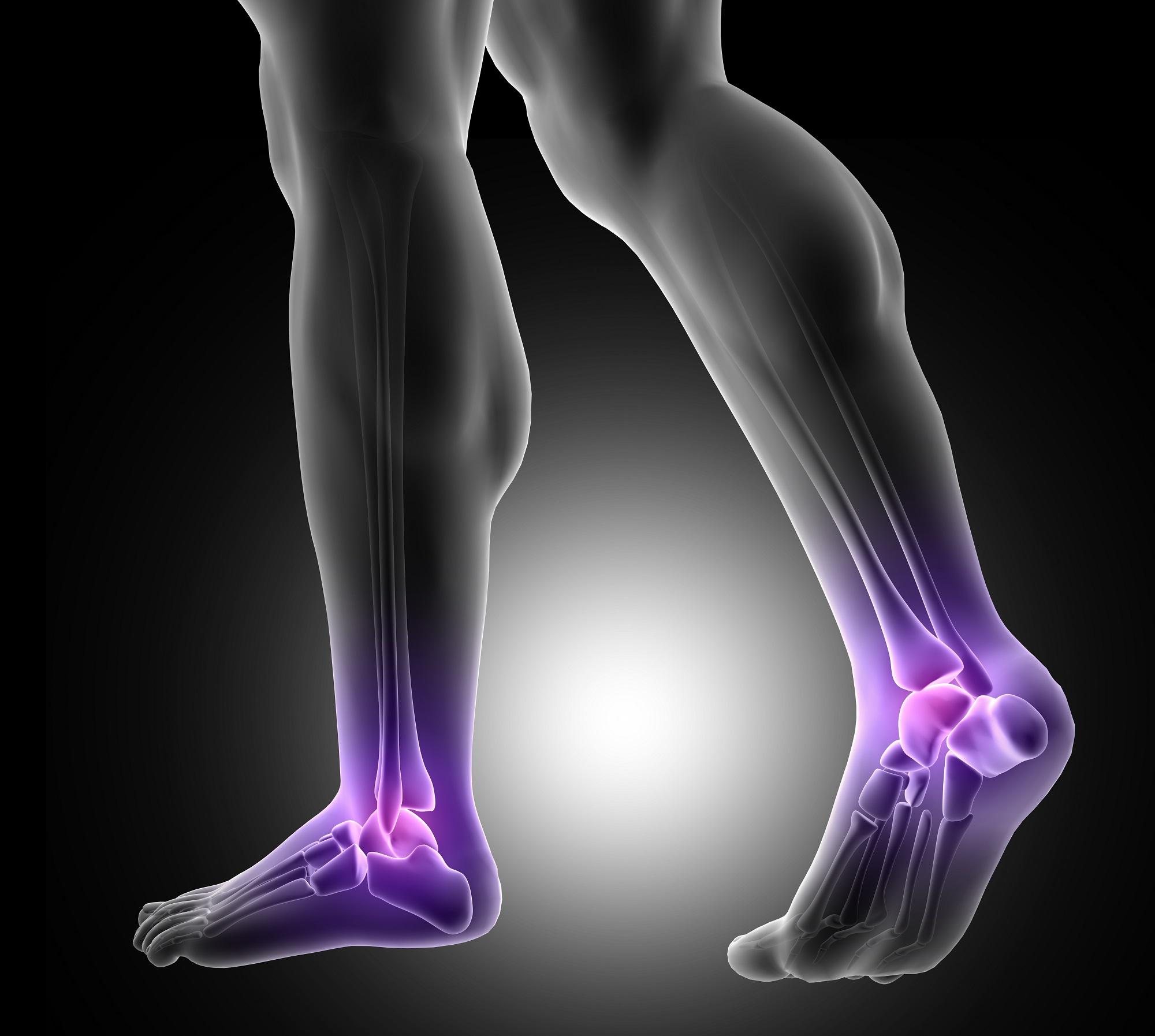 fájdalom a lábakban az alsó végtagok ízületeiben