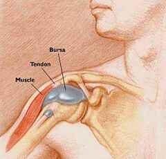 Bursitis (nyáktömlő gyulladás) - Súlypont Ízületklinika