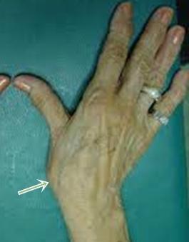 a tenyér artrózisának kezelése artrózis kezelése glicerinnel