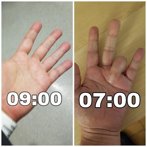 a mutatóujj fájdalma a bal kéz ízületében)