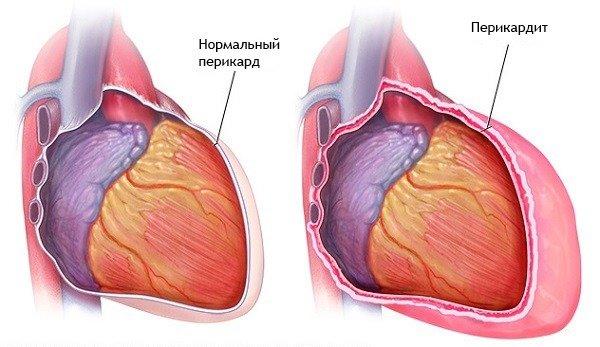 a clavicularis ízület szegycsontjának gyulladása)