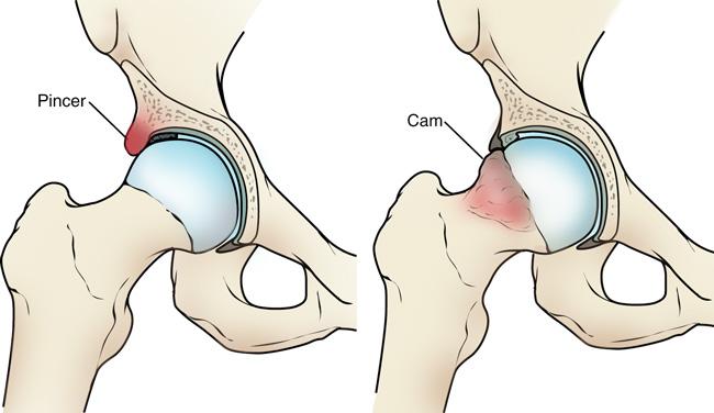 a csípőízület lábfájdalma megszűnik)