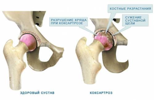 a csípőízület ízületi gyulladásának milgamma