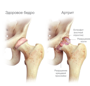 a csípőízületek deformáló ízületi stádiuma)