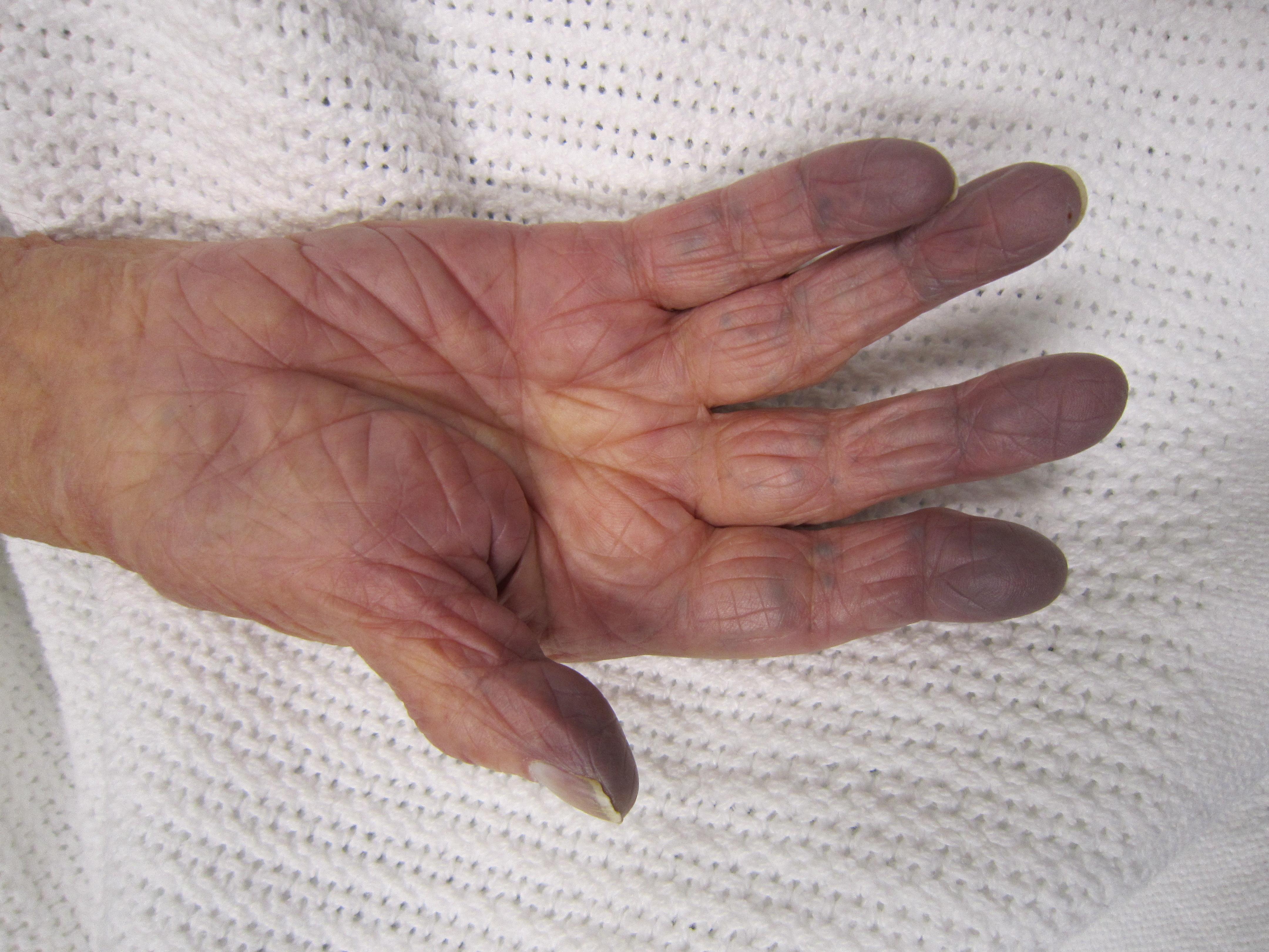 a kéz ütések az ujjain a bokaízület nagyon fájdalmas