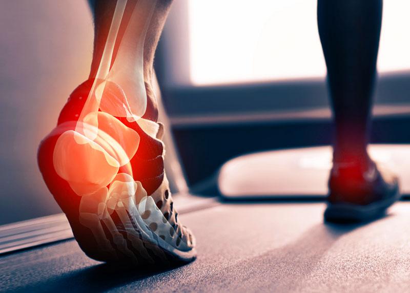 a lábszűk cipő ízületeinek gyulladása