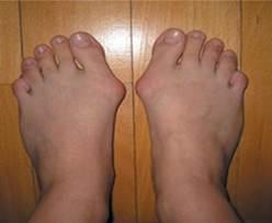 a második lábujj artrózisának kezelése)