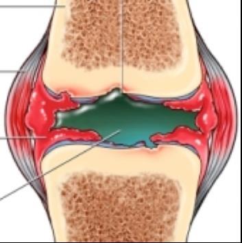 a térd másodlagos ízületi gyulladása)