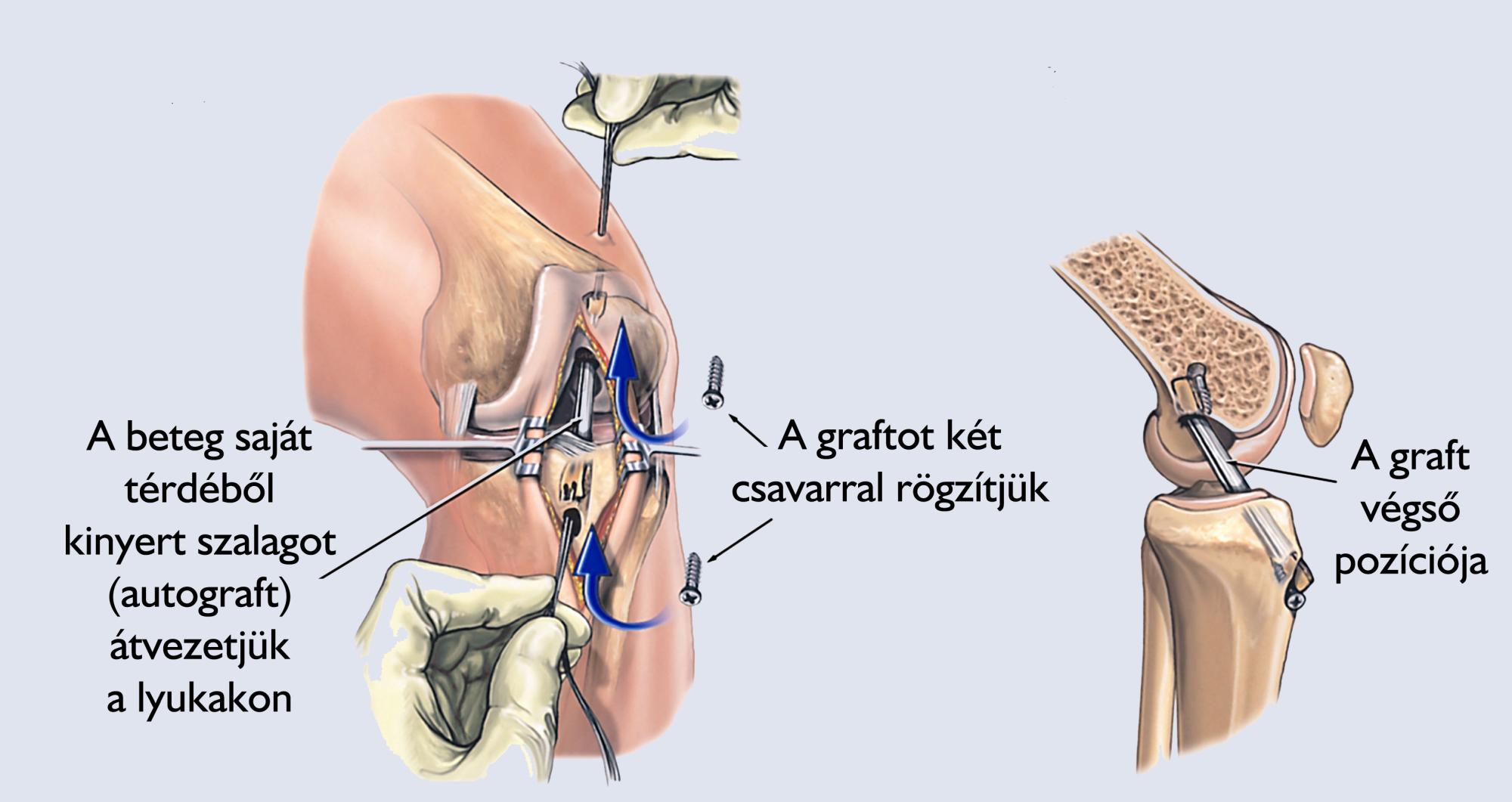 csípő artrózisa 1 és 2 fokú kezelés)