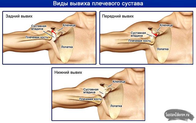 a vállízület kezelésének szokásos elmozdulása)