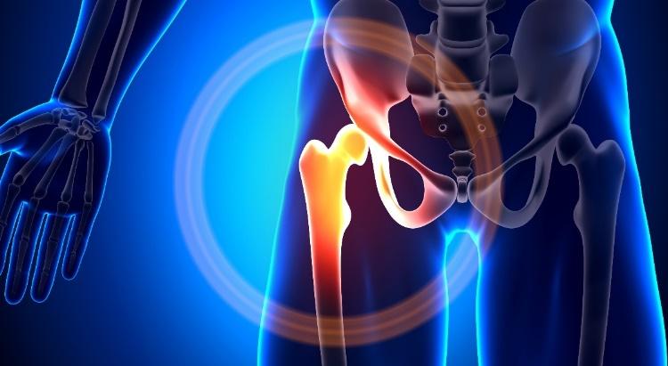 a felső csípőízület fájdalma okoz)