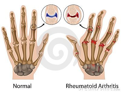 az ujjak ízületei megnagyobbodtak és fájnak