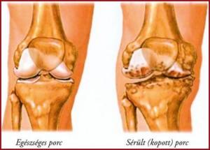 A térd artrózisa 1 és 2 fok között