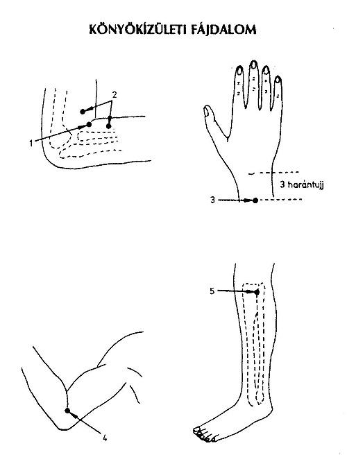 térdízület orvoslás mi kezeli a térd gonartrózist
