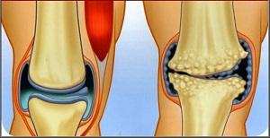 az artrózis sikeres kezelése)