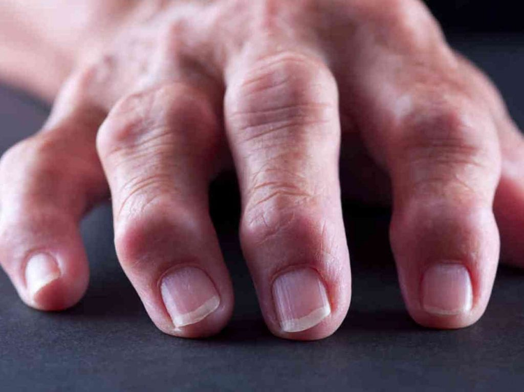 kúpok az ujjak ízületein, mint kezelni együttes kezelés veszettség esetén