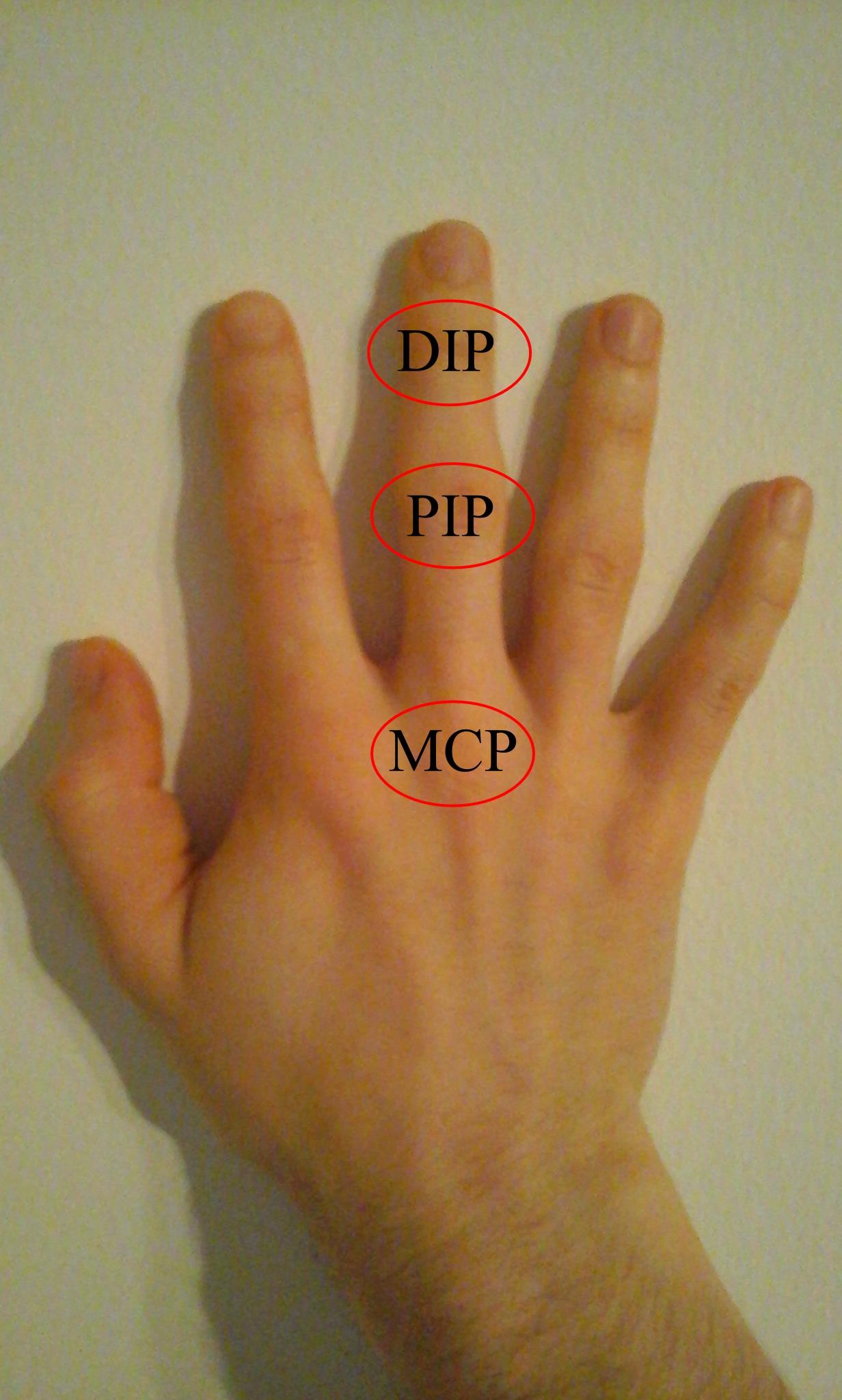 a középső ujj ízületi gyulladása milyen fáj a térd