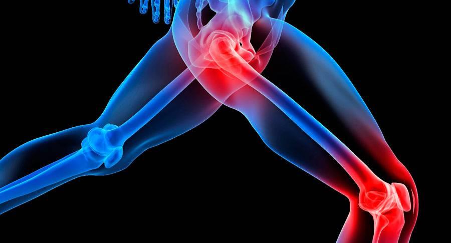 ízületi fájdalommentes projekt kötőszöveti gyulladásos szindróma