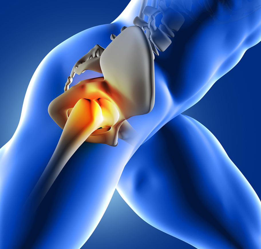 Csípőprotézis műtét után - Mozgásszervi megbetegedések
