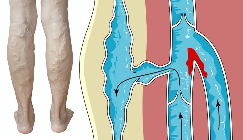 az ízületek fájnak a présből térdízületek fájdalmainak kenőcs kezelése
