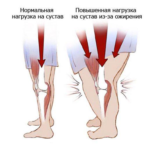 a kar lábainak ízületei fájnak
