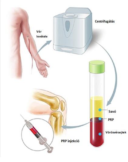 az injekciók hatékonyak ízületi fájdalmak esetén