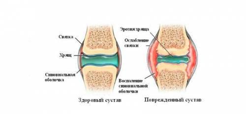 don vállízület artrózisával