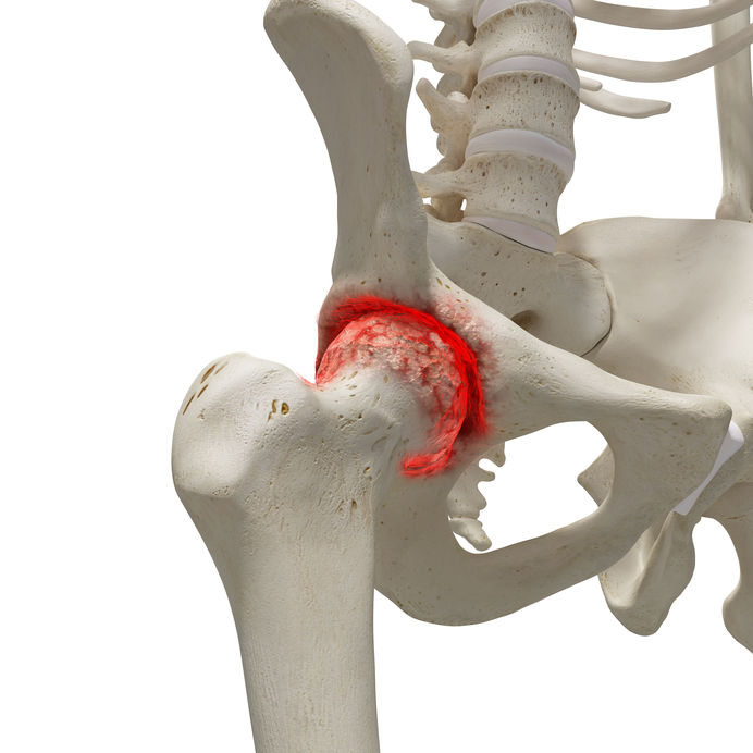 posztoperatív artróziskezelés