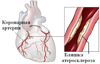 fájdalom a bal kéz vállízületében periarthritis)