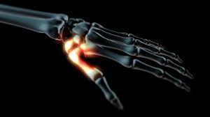 fájdalom hüvelykujjízülettel