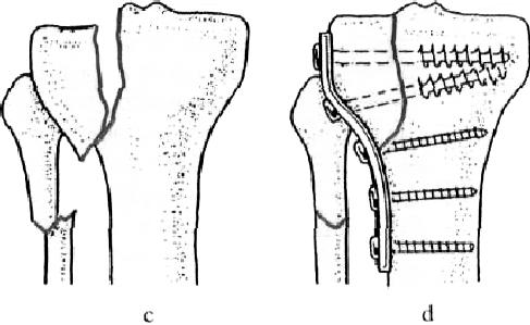 ízületi törés kar kezelése