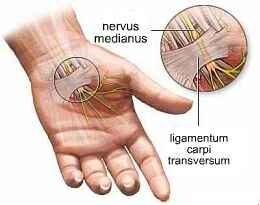 a csuklóízület és az ujjak fájdalma)