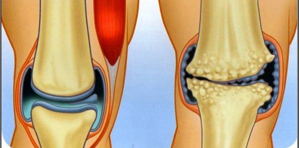sarok artrózis kezelés áttekintés
