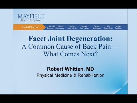 crovertebralis arthrosis c5 kezelés a térd saját szalagjának károsodása