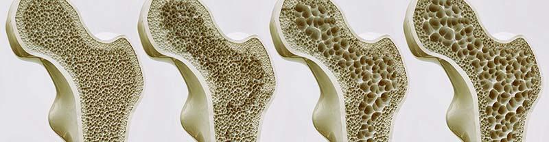 csontritkulás hogyan kell kezelni
