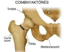 csípőprotézis után térdfájás milyen gyógyszer gyógyítja az osteochondrozist
