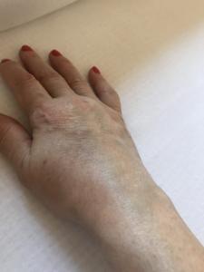 fizioterápia a csípőízület artrózisának kezelésére kondroitin hatékonyságú gyógyszerek