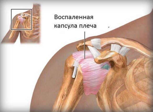 gyakorolja a vállízület artrózisát gyakorlással)