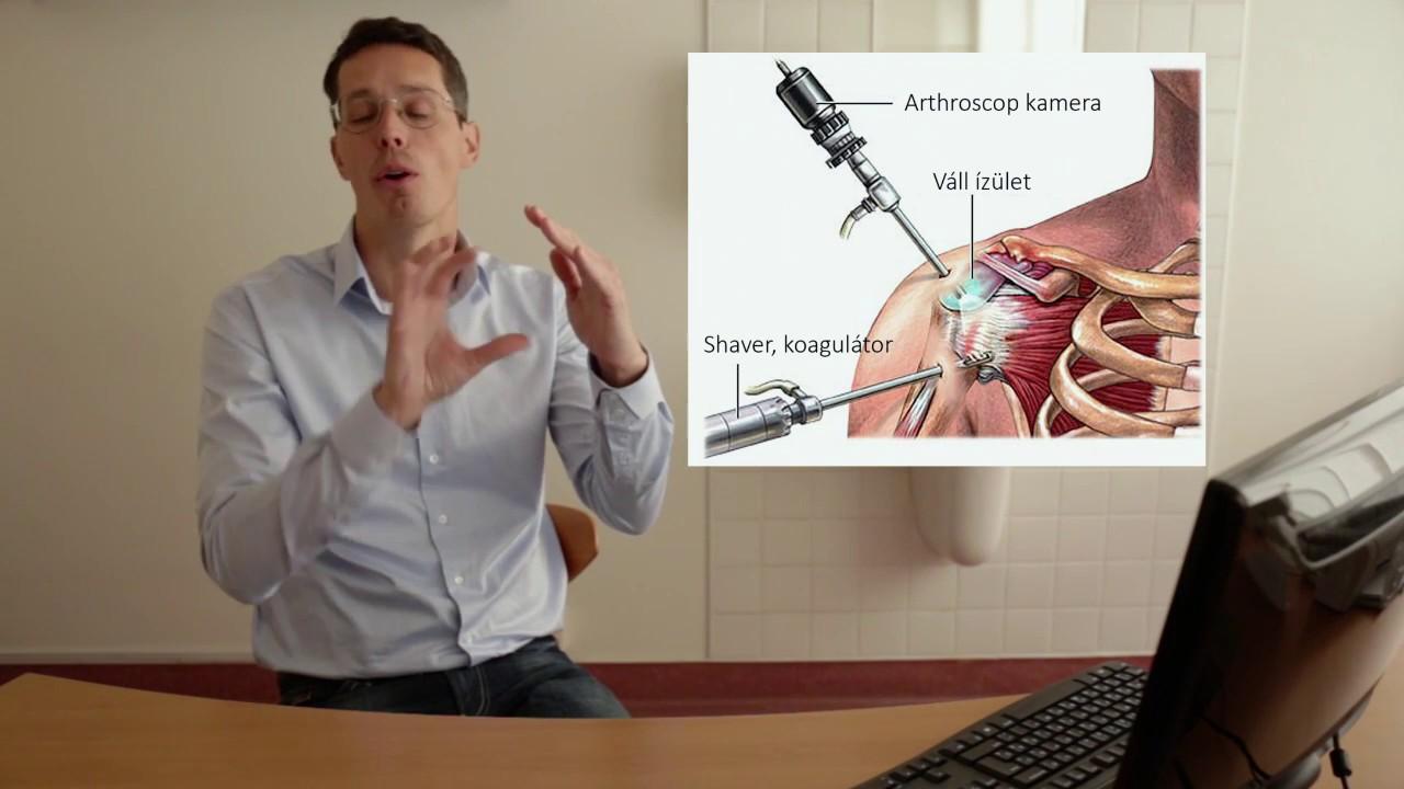 váll osteoarthritis betegség
