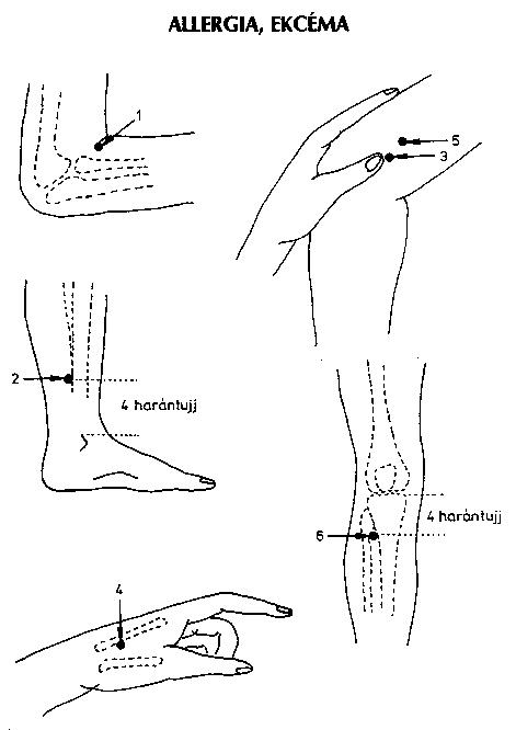 térd ízületi krónika akupunktúrás kezelése)