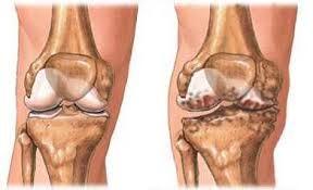 a bokaízület első fokának artrózisa