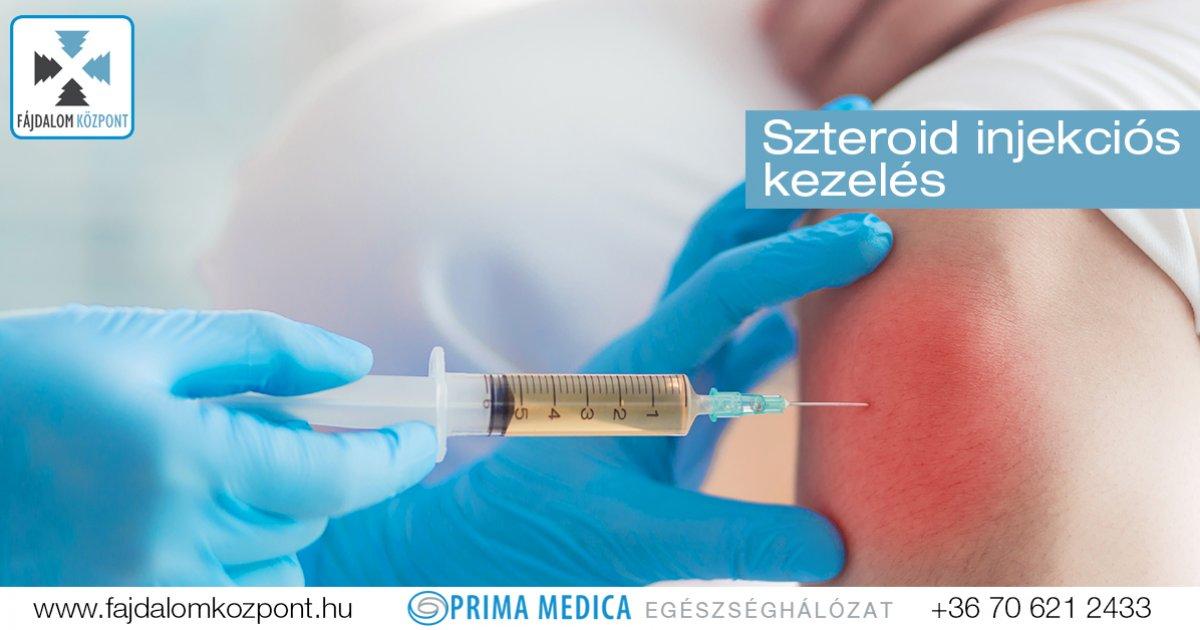 Szteroid injekciós fájdalomcsillapítás