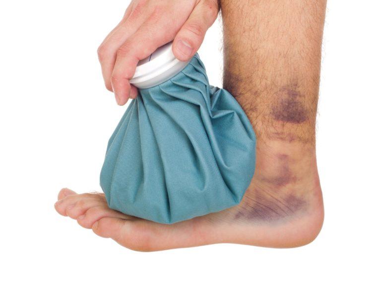 a boka ízületének kötszerzése ligamentum sérülés esetén a könyökízületek betegségének pszichológiája