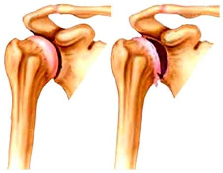 gyakorolja a vállízület artrózisát gyakorlással