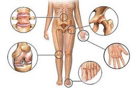 csípőizület fájdalom oka