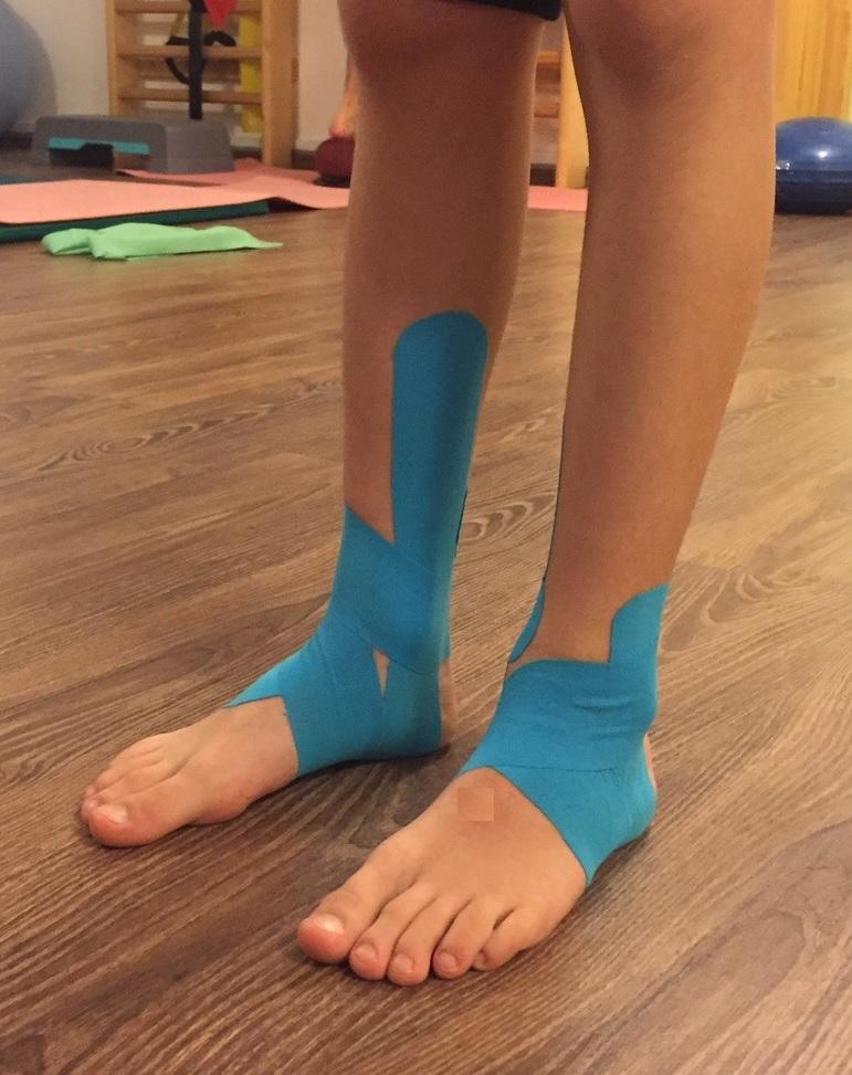 Inverziós trauma: a kibicsakló boka és a Kinesiotape