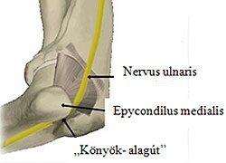 emberi könyök sérülés áttekintés az artrózis kezeléséről magyarországon