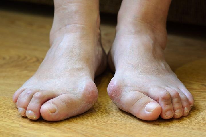 fájó láb a lábujjak között mit kell tennie