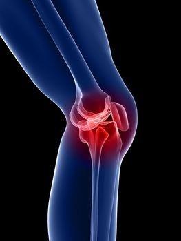 a bal térdízület deformált artrózisa